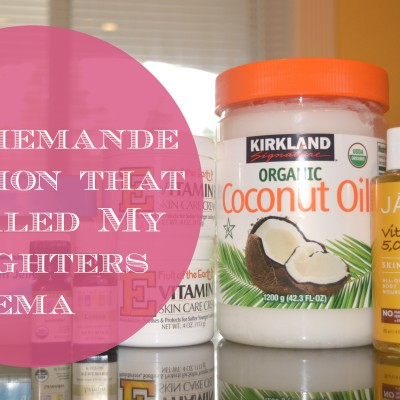 The Homemade Lotion that Healed my Daughters Eczema
